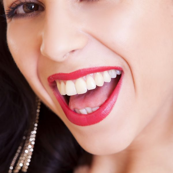 The Dangers of Teeth Whitening